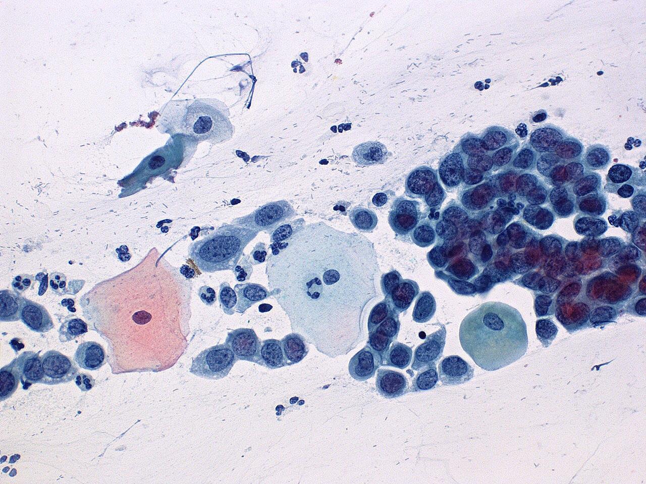 Obraz cytologiczny dysplazji wysokiego stopnia (CIN3, HSIL)